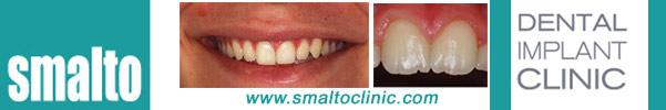 http://www.smaltoclinic.com